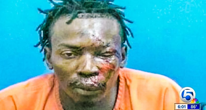 Really? Florida Sheriff Says There Is 'Absolutely No Evidence' This Man Was Beaten